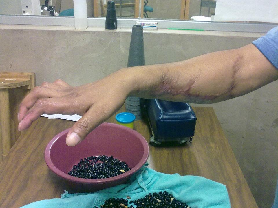 Tratamiento para sensibilidad y movilidad de pinza fina y gruesa de los dedos de la mano.